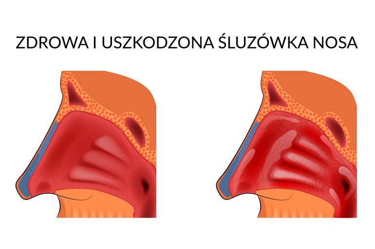 Nawilżanie i regeneracja błony śluzowej